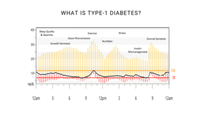 Andrew P. Koutnik – Part 1: What is Type-1 Diabetes?